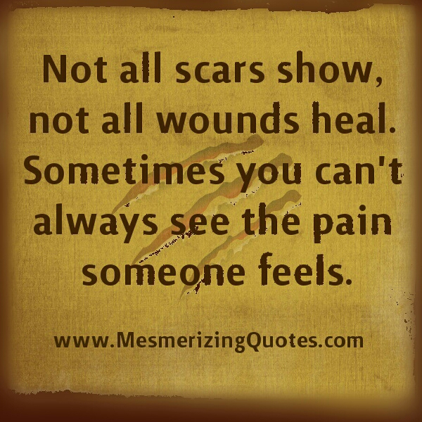 You can't always see the pain someone feels